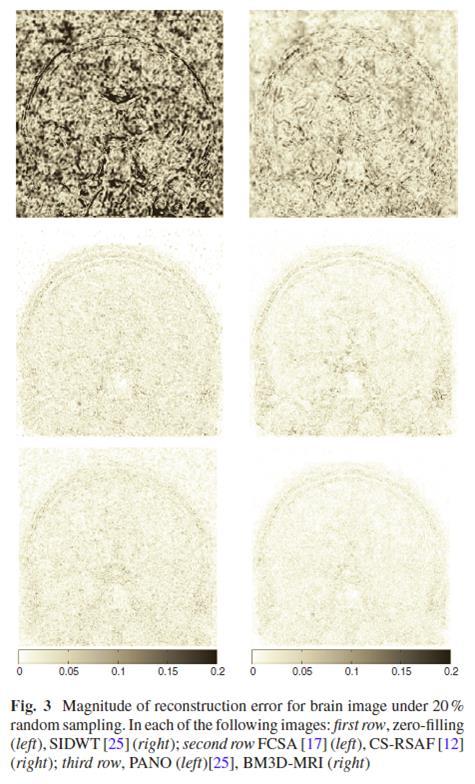 BM3D-MRI project page