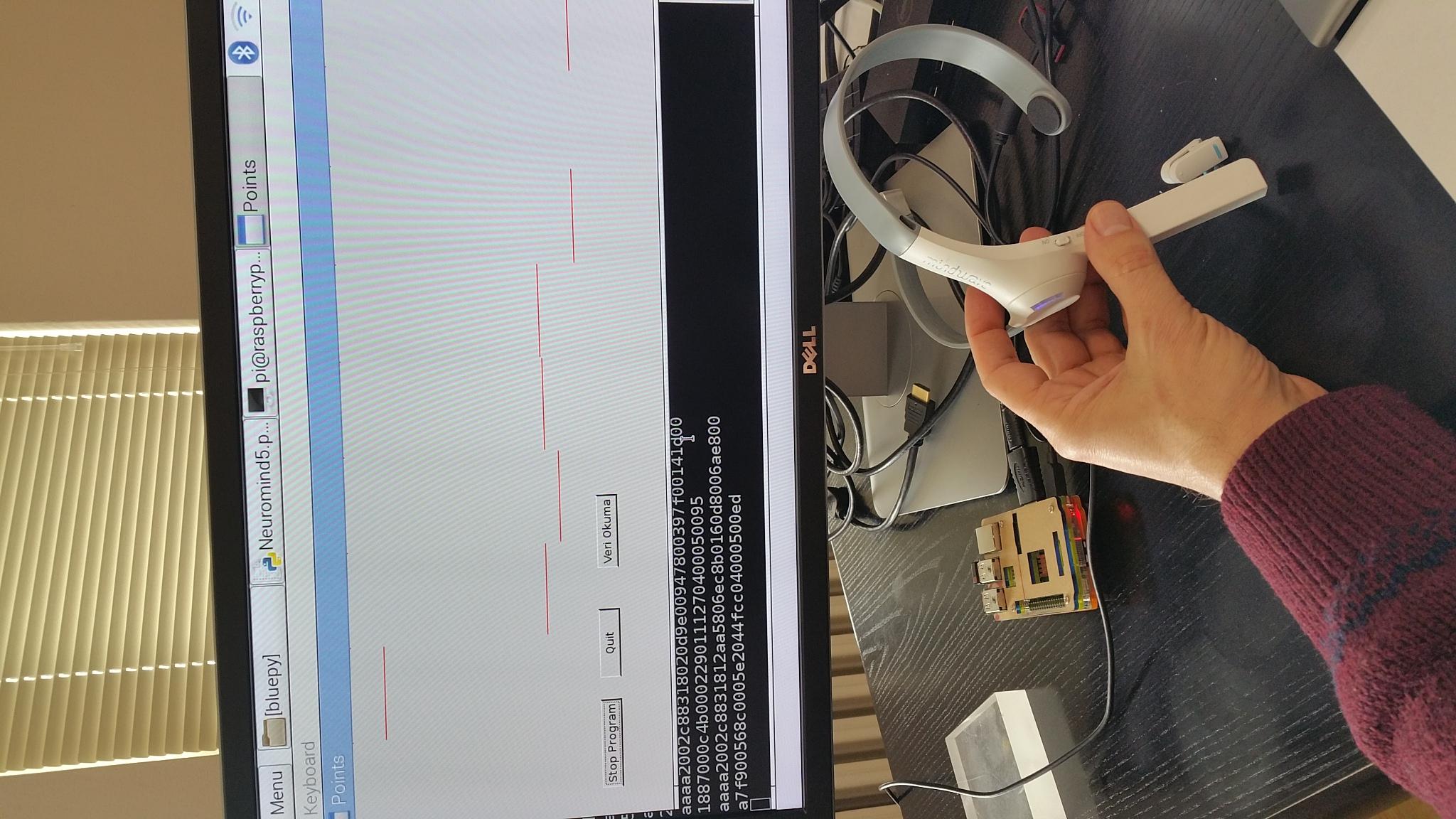 Wireless ECG via Bluetooth by Prof  Dr  Tamer OLMEZ